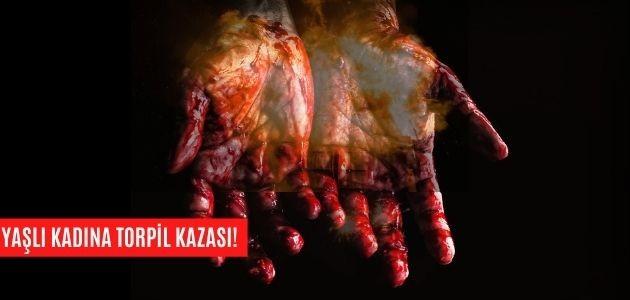 TORPİL YAŞLI KADININ ELİNDE PATLADI!